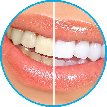 Эффективная эстетическая стоматология