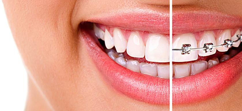 Выравнивание зуба хирургическим путем